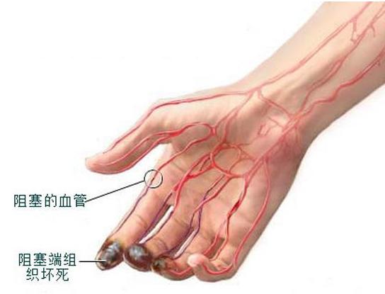 中医治疗老烂腿方剂
