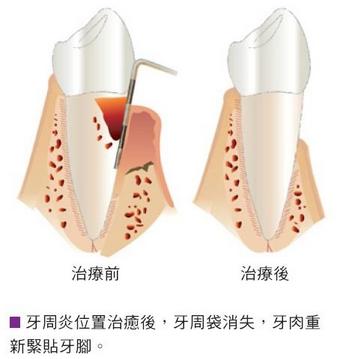 牙周组织结构图