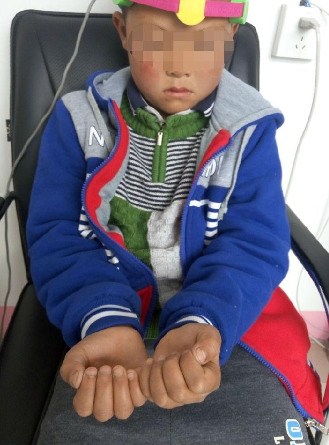 济宁治疗抽动症医院-小儿抽动秽语综合征(又称