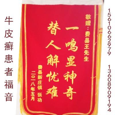 牛pi癣患者suo送jin旗6