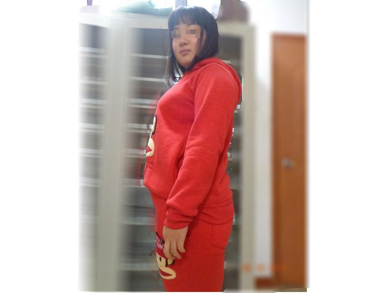 减肥案例_韩国瘦姿减肥
