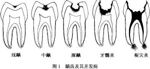 """烂了牙的孩子不肯治的话,是否可以等他自然换新牙? 家长一定要说服这些孩子去医院看牙,不能等待观望。那种""""乳牙反正要替换的,因此不治也不要紧""""的想法是错误、过时的,一定要彻底纠正过来。 乳牙烂了,可不单单是会影响孩子的容貌,更重要的是龋齿产生的疼痛会影响孩子的学习和生活,也会影响恒牙的替换。"""